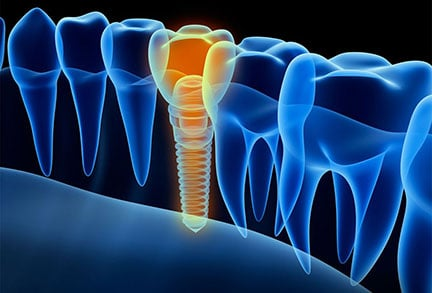 Computer-Guided Dental Implants